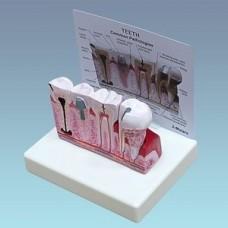 Набор для демонстрации различных патологий зубов